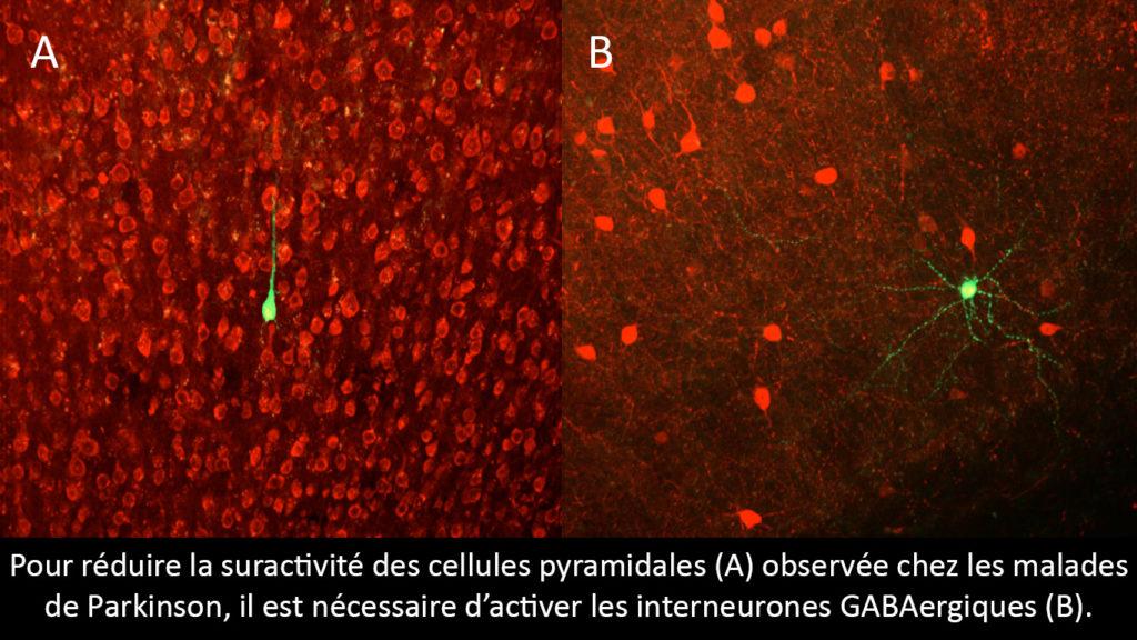 actu-sept17-parkinson-Cellule-pyramidale-et-interneurone